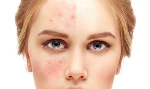 no-more-acne-with-facial-massage